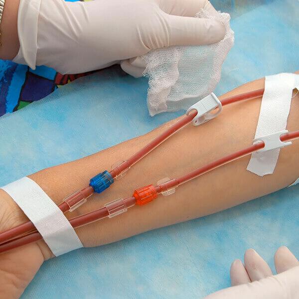 Especialista en hemodiálisis y otras técnicas de depuración extrarrenal para enfermería online