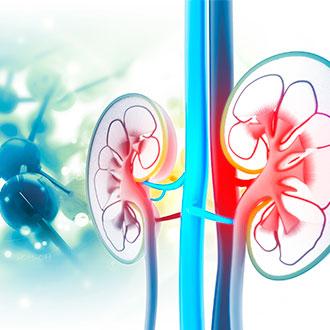 Experto en nefrología y diálisis online