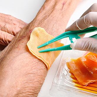 Experto universitario en práctica avanzada de enfermería en la atención de personas con heridas crónicas y complejas online