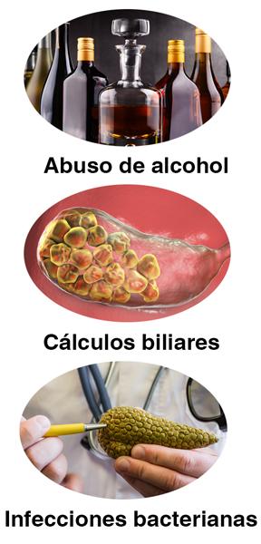 Los cálculos biliares, las infecciones y el abuso de alcohol son las causas más comunes.