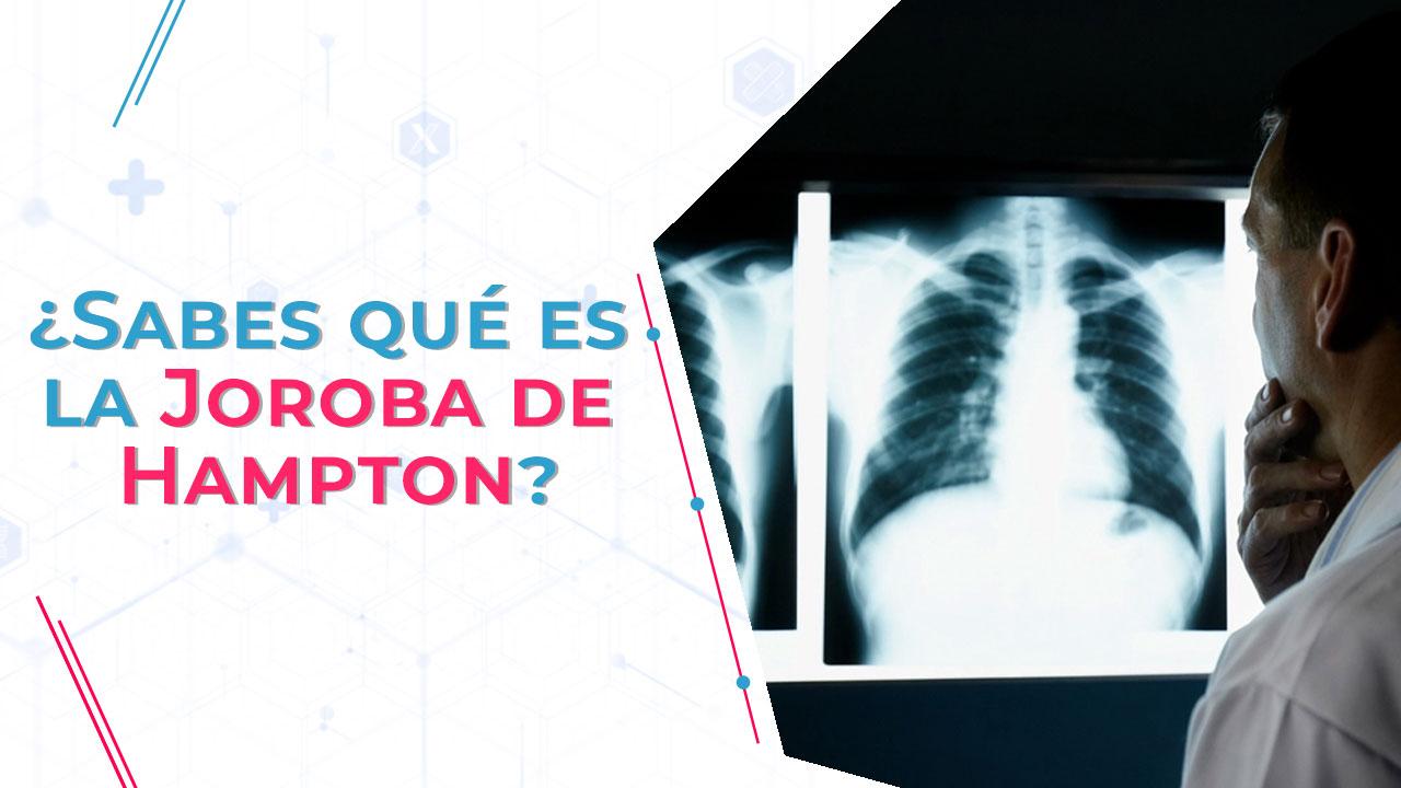 La joroba de Hampton es un signo radiológico clásico de la embolia pulmonar.