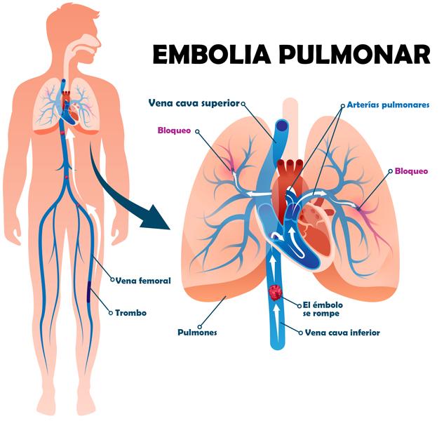 El infarto puede estar causado por una embolia pulmonar aguda.