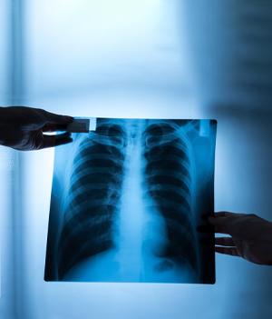Las fracturas de las costillas o la columna vertebral u otros problemas con los huesos pueden verse en una radiografía de tórax.