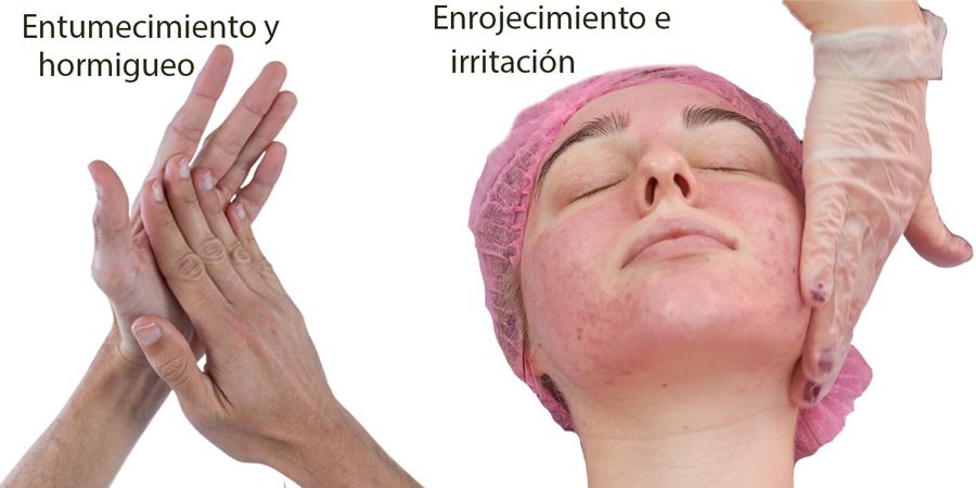 Los efectos secundarios más comunes de cualquier tipo de crioterapia son entumecimiento, hormigueo, enrojecimiento e irritación de la piel.