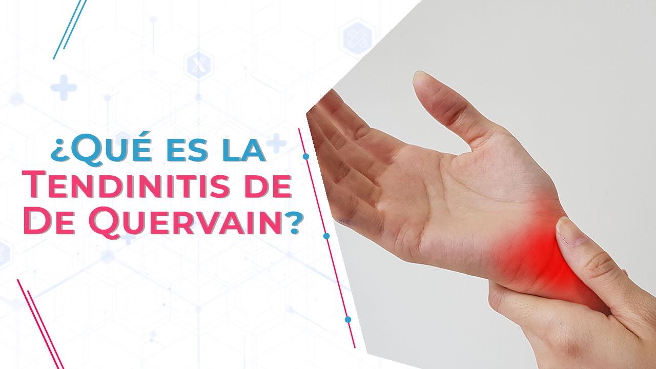 ¿Qué es la Tendinitis de De Quervain?
