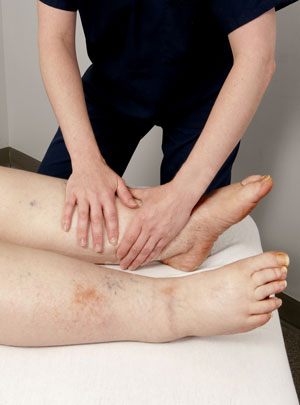 Un profesional trata a una persona con linfedema en la pierna