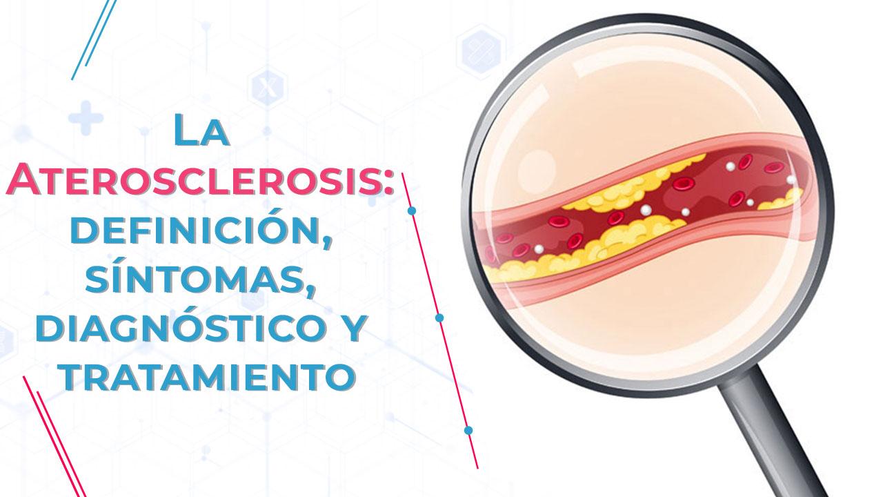 La aterosclerosis, definición, síntomas, diagnóstico y tratamiento