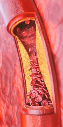 Síntomas de la aterosclerosis