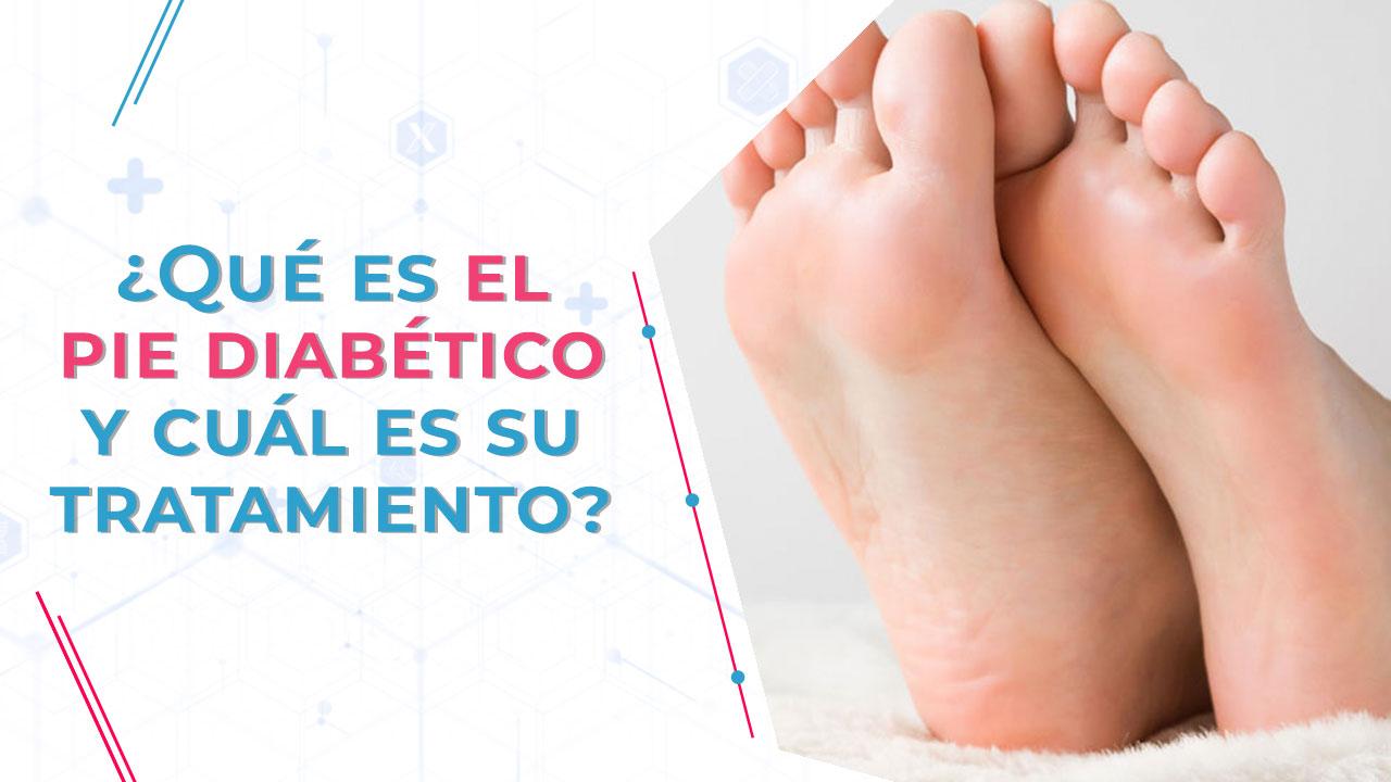 ¿Qué es el pie diabético y cuál es su tratamiento?