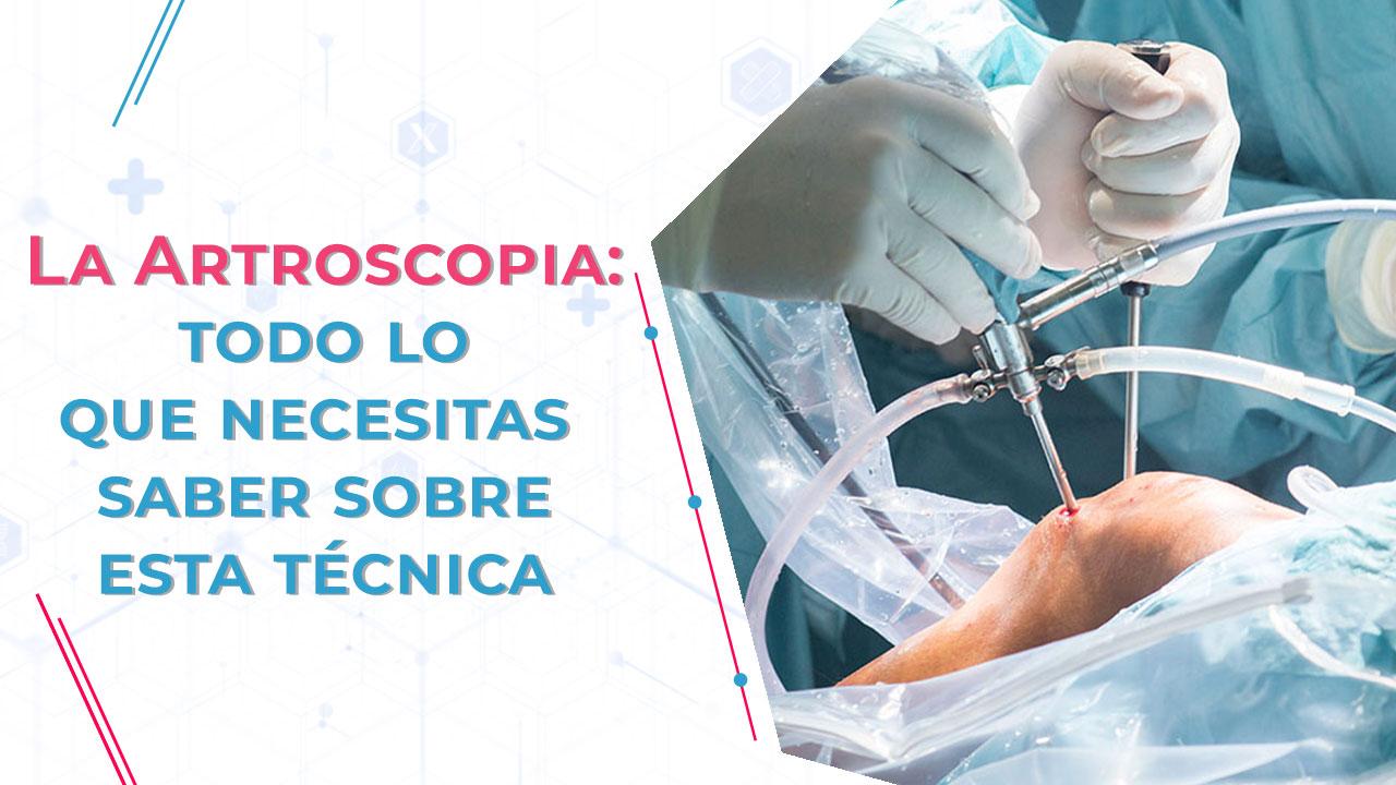 Artroscopia - Todo sobre esta Técnica