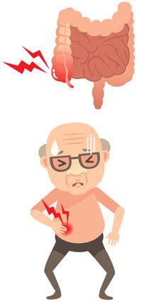 La apendicitis es una inflamación del apéndice.