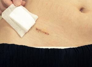 El principal tratamiento de la apendicitis se basa en un tratamiento quirúrgico.